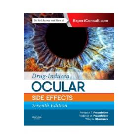 Drug-Induced Ocular Side Effects 7E