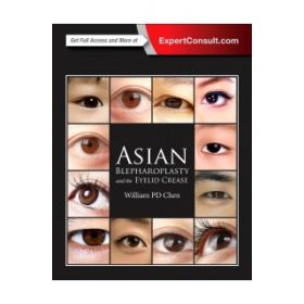 Asian Blepharo & the Eyelid Crease 3E