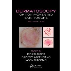 Dermatoscopy of Non-Pigmented Skin Tumors