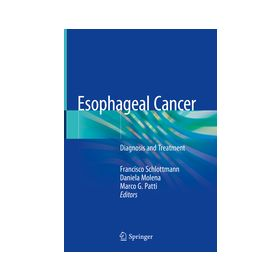 Esophageal Cancer Diagnosis and Treatment